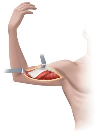 CME The Surgical Treatment of Brachial Plexus Injuries
