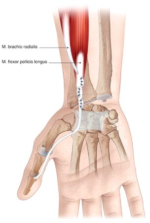 Adult Brachial Plexus Injury - Nerve