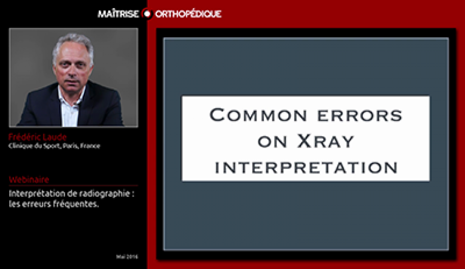 Common errors on X-Ray interpretation