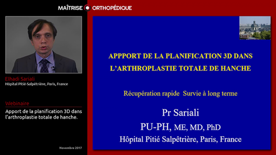 Apport de la planification 3D dans l'arthroplastie totale de hanche.