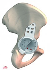 The philosophy of total hip replacement revision at Mayo Clinic