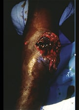 Management of limb injuries caused by weapons of war or explosions in an attack