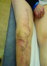 Debridement in osteoarticular infections: my principles and everyday practice