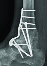 Total ankle arthroplasties: a reliable solution
