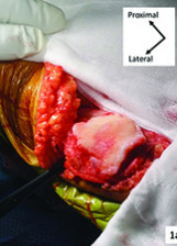 How and why we resurface the patella