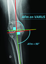 Total knee replacement after femoral varus osteotomy : Technical challenges and clinical results