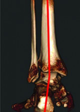 Cone Beam Computed Tomography: A 3D Revolution in Extremity Imaging
