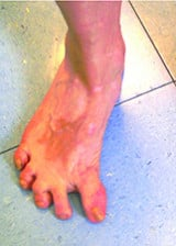 Treatment of postoperative hallux varus by reverse scarf osteotomy
