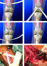 Surgical management of TKA extensor mechanism rupture