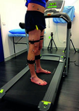 Multiligament knee injuries and Gait analysis