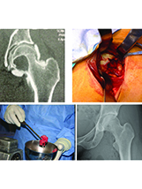 The anteromedial approach to the hip in adults
