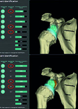 The Benefit of Glenoid lateralization (BIO-RSA) To Optimize Range of Motion and Reduce Scapulohumeral Impingement in Reverse Shoulder Arthroplasty