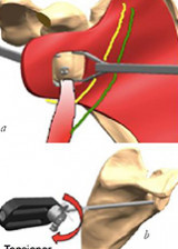 Arthroscopic guided Latarjet