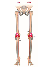 Mechanical alignment alternatives: From anatomical to kinematic alignment in total knee arthroplasty