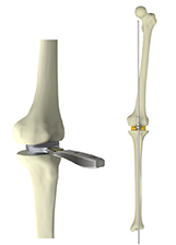 The KNEO posterior-stabilized implant for TKA: Universal surgical instruments for all knee surgeons