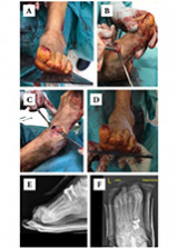 Arthrodesis with retrograde compression nail  in Charcot neuroarthropathy of the hindfoot