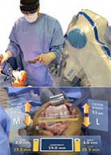 The future of robotic TKA surgery - a critical review but positive outlook