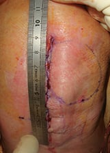 Lateral unicompartmental knee arthroplasty with mechanical instrumentation : tips and tricks to guarantee excellent long-term outcomes