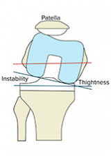 Myths and Facts on Components Rotational Alignment in Total Knee Arthroplasty